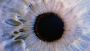 Brown eyes surgery for blue eyes