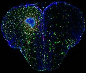 In the injured hemisphere of the zebrafish brain (left) you can recognize the inflammation: the leukocytes (white blood cell, green) enter the damaged area in order to prevent inflammation. In addition, you can see the active radial glia cells (red). (c) CRTD
