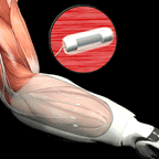 Artist's concept of Leaded Implantable Myoelectric Sensors (LIMES) to be used as a novel peripheral-interface technology with targeted muscle re-innervation (TMR)