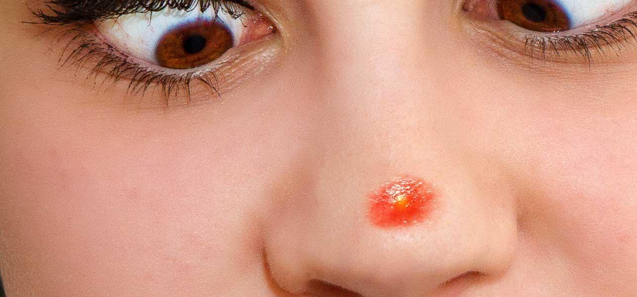 pimple-nose