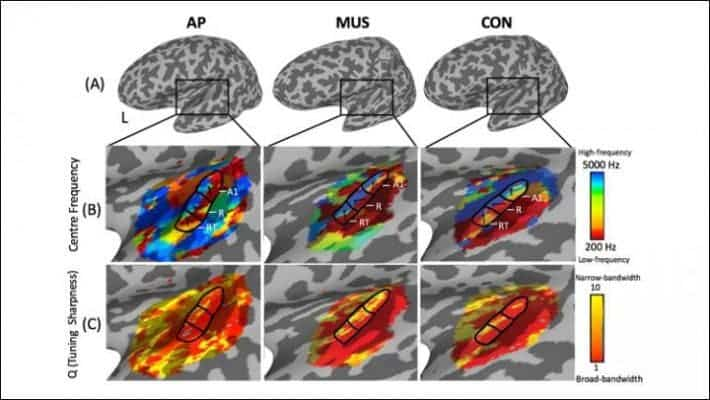 Individuals with absolute pitch (AP) had a more active auditory cortex than non-AP individuals. Credit: McKetton et al., JNeurosci.