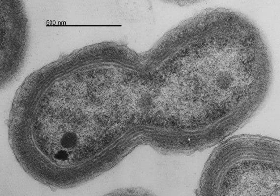 Prochlorococcus MED4 EM dividing. Credit: Wikimedia Commons.
